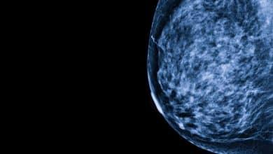 Breast Density Also Ups Risk of Breast Cancer in Older Women 5