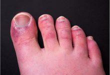 Chilblain-like lesions and COVID-19 9