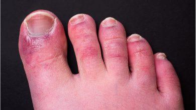 Chilblain-like lesions and COVID-19 4