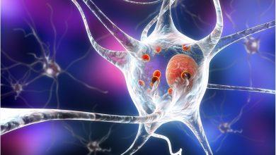 High fat diet exacerbates Alzheimer's disease in mouse model 4
