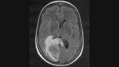 Case Report: Risk for Cerebral Edema, AFCE in Children With COVID 5