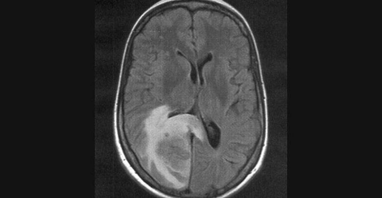 Case Report: Risk for Cerebral Edema, AFCE in Children With COVID 1